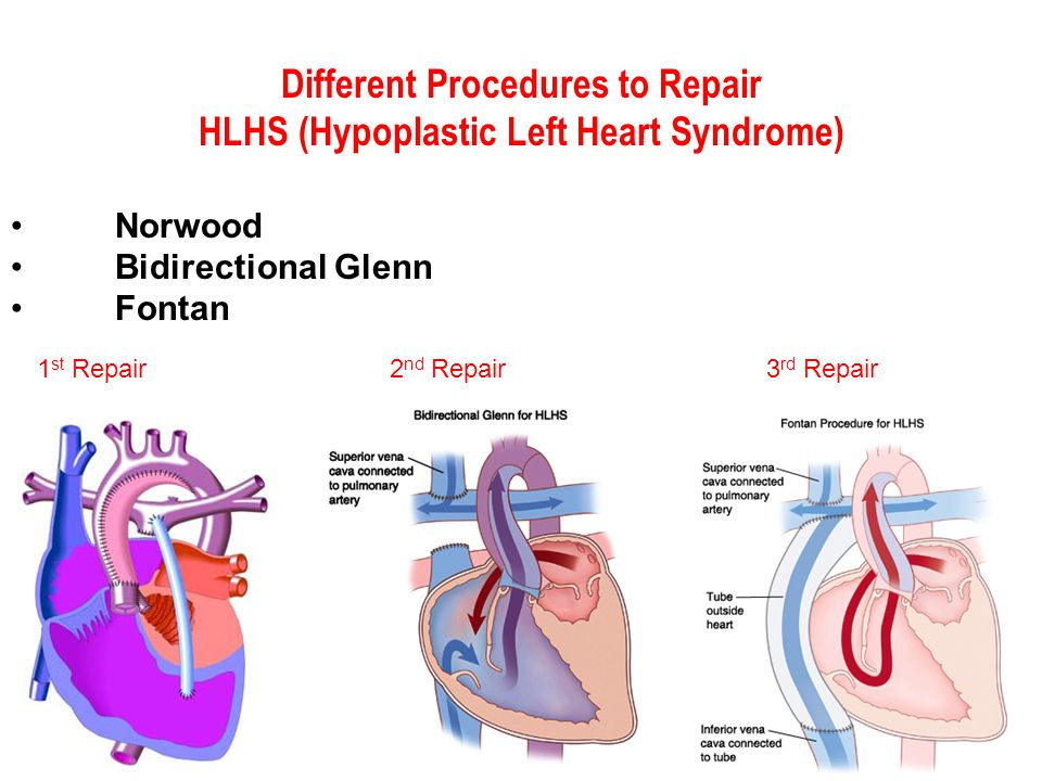 Different Procedures to Repair HLHS (Hypoplastic Left Heart Syndrome)