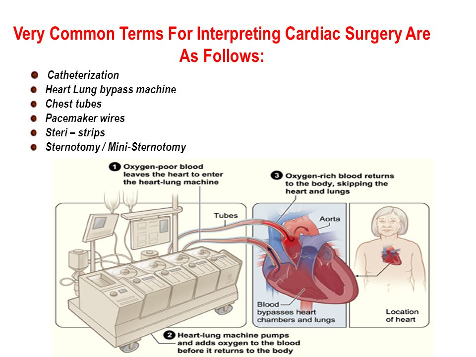 Very Common Terms For Interpreting Cardiac Surgery Are As Follows: