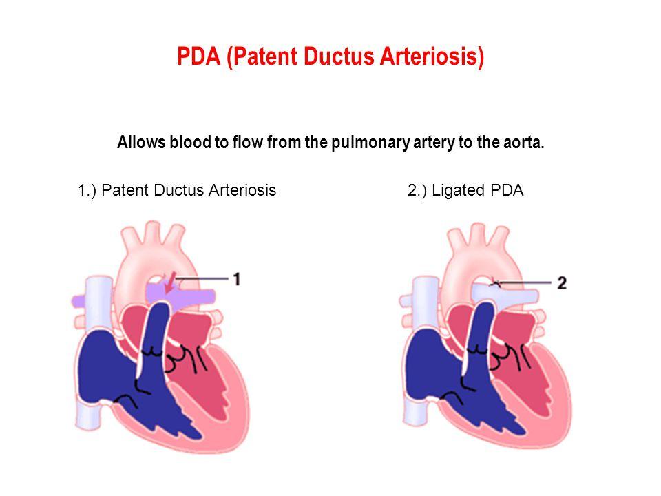 PDA (Patent Ductus Arteriosis)