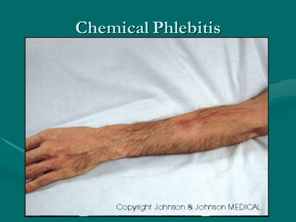 Chemical Phlebitis