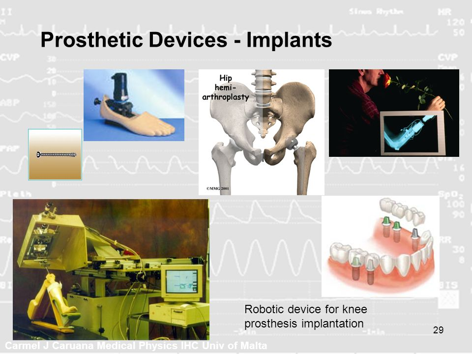 Prosthetic Devices - Implants