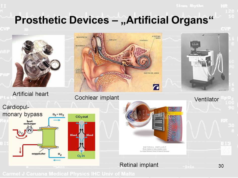 "Prosthetic Devices – ""Artificial Organs"