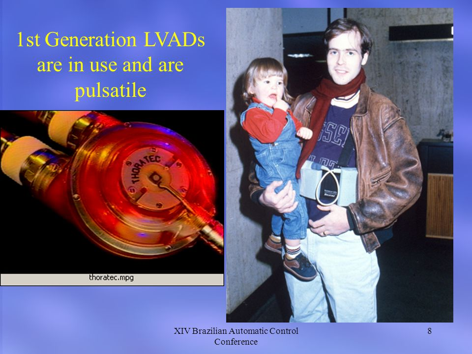 1st Generation LVADs are in use and are pulsatile