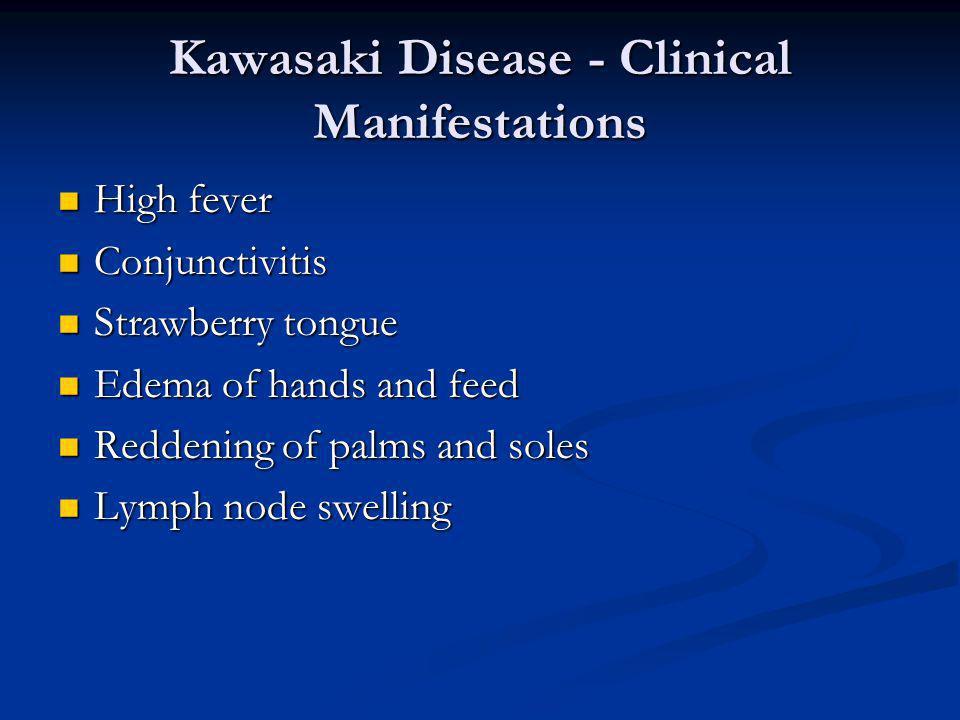 Kawasaki Disease - Clinical Manifestations