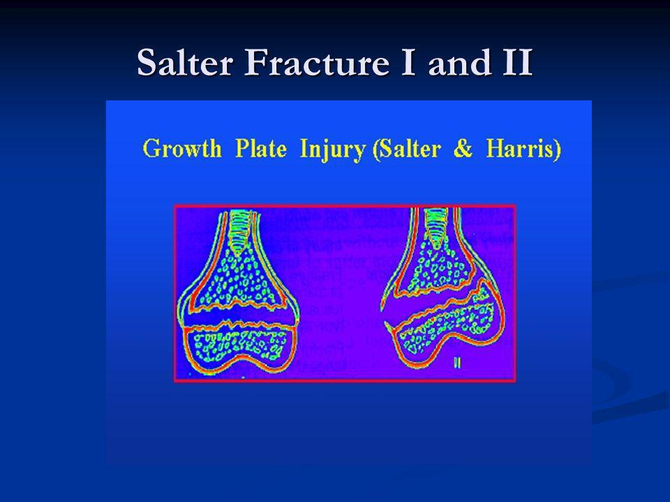 Salter Fracture I and II
