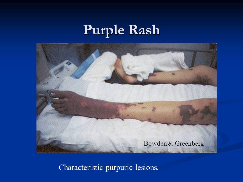 Purple Rash Bowden & Greenberg Characteristic purpuric lesions.