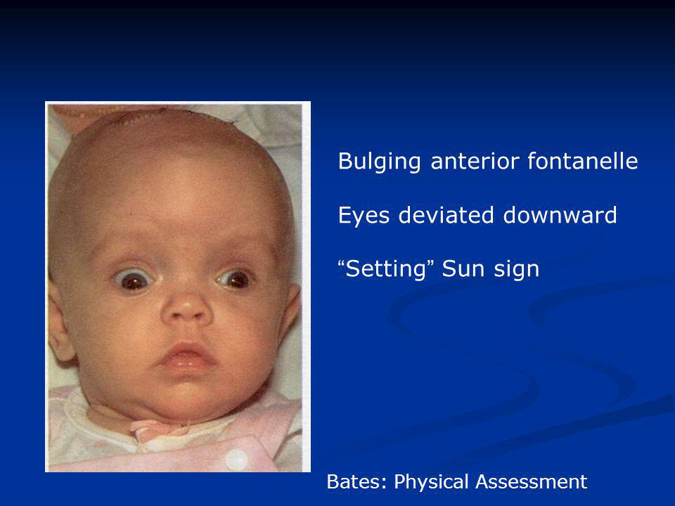 Bulging anterior fontanelle Eyes deviated downward Setting Sun sign