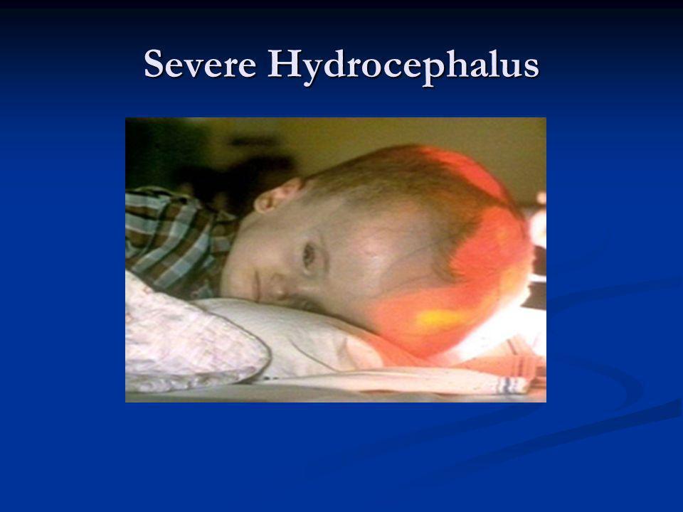 Severe Hydrocephalus