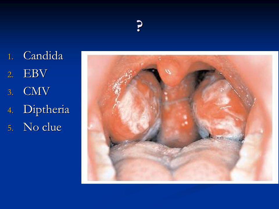 Candida EBV CMV Diptheria No clue