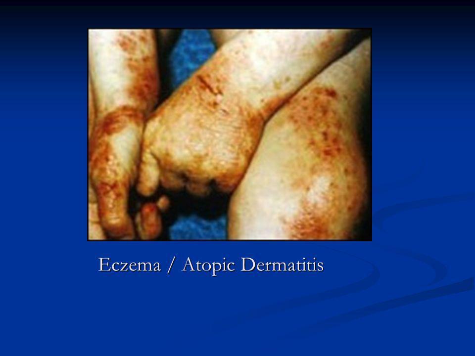 Eczema / Atopic Dermatitis