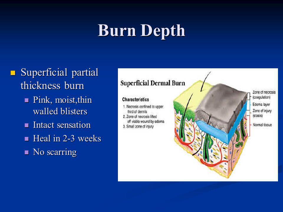 Burn Depth Superficial partial thickness burn
