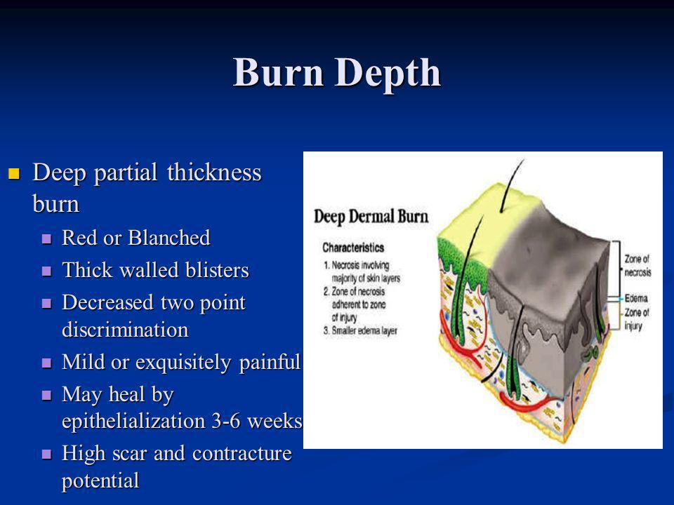 Burn Depth Deep partial thickness burn Red or Blanched