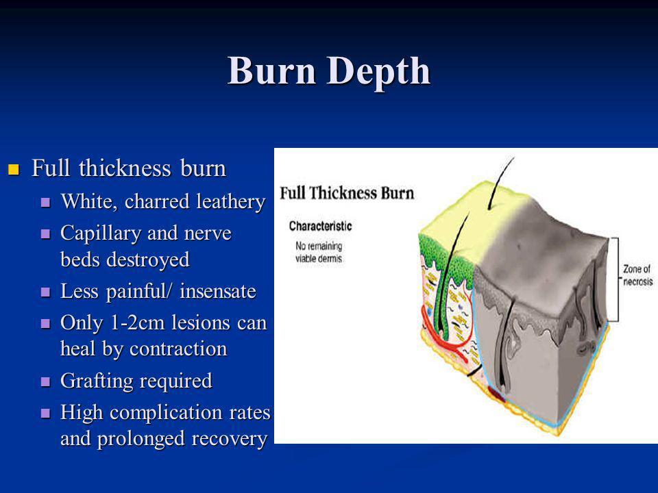 Burn Depth Full thickness burn White, charred leathery