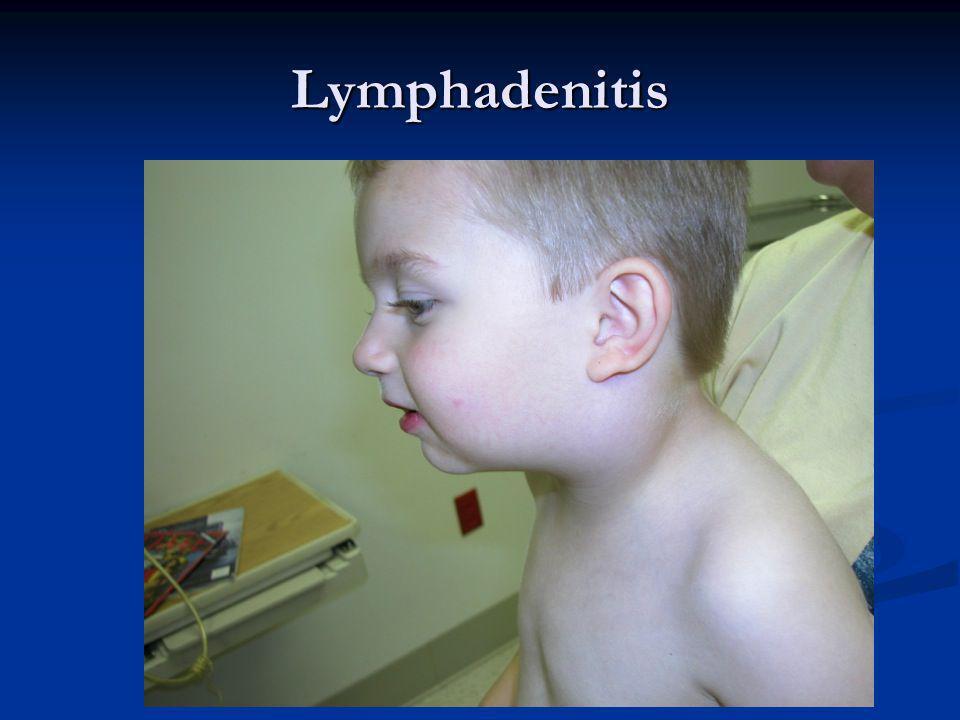 Lymphadenitis