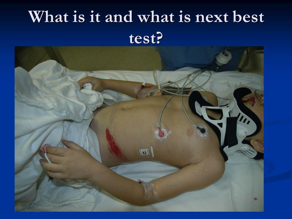 What is it and what is next best test