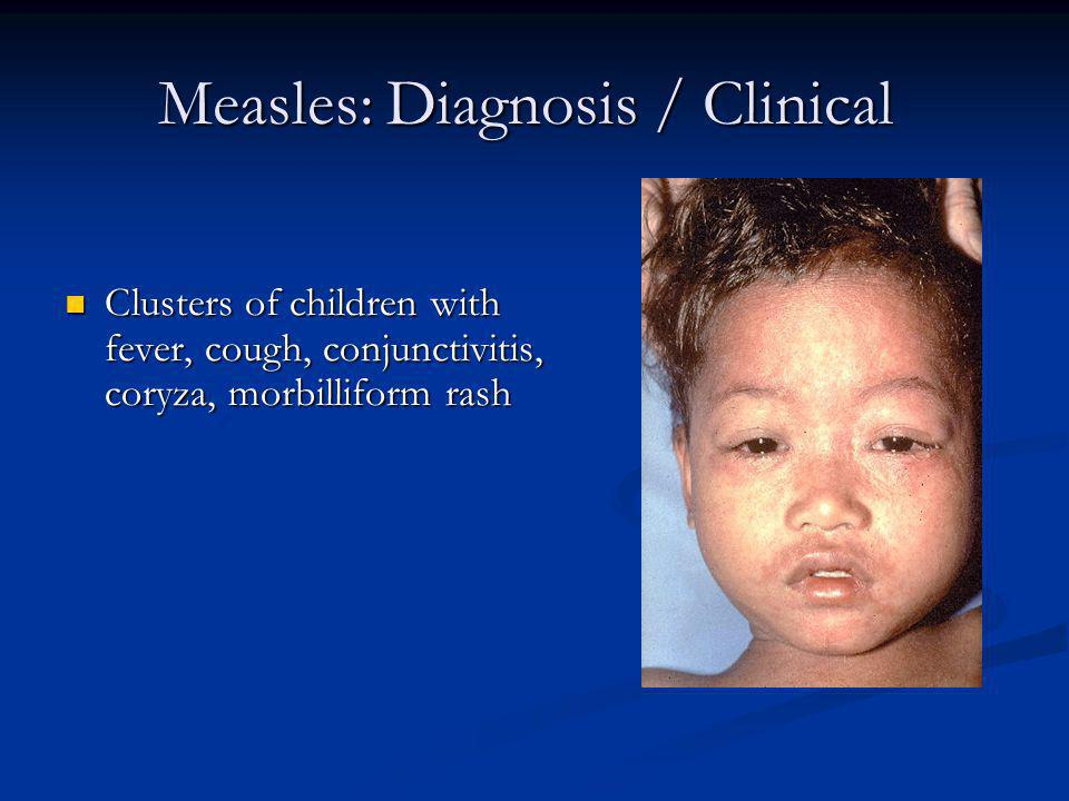 Measles: Diagnosis / Clinical