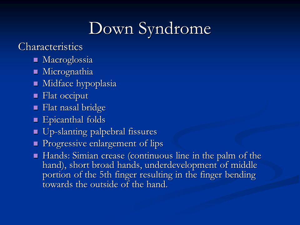 Down Syndrome Characteristics Macroglossia Micrognathia