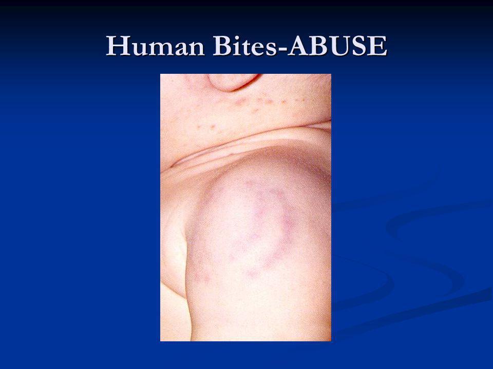 Human Bites-ABUSE