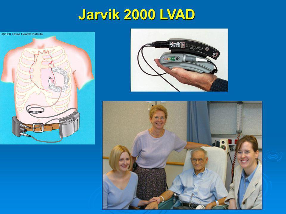 Jarvik 2000 LVAD