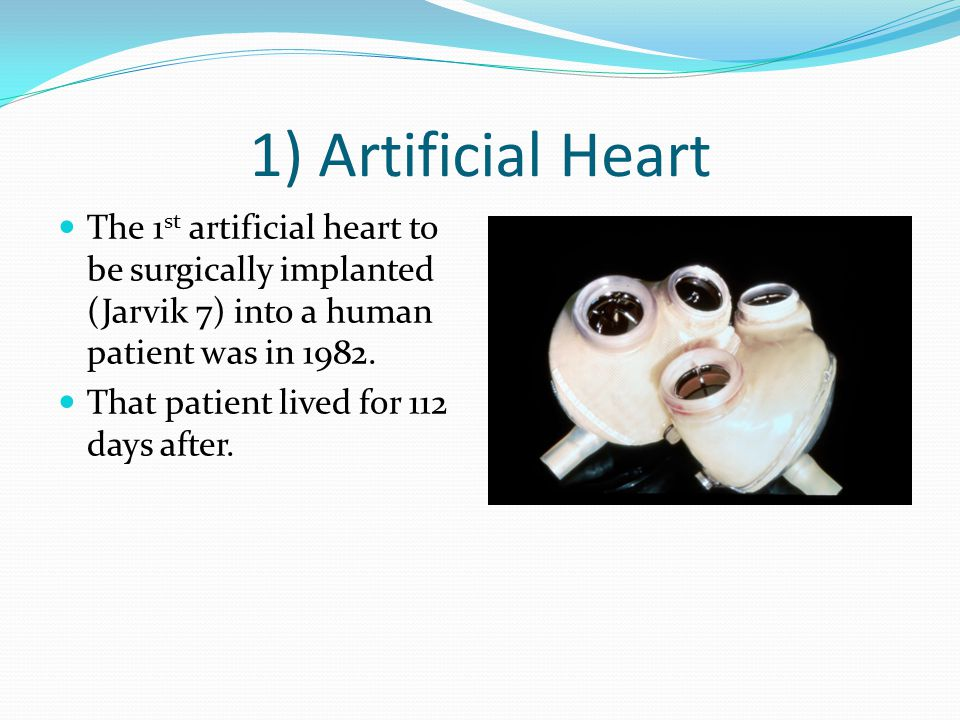 1) Artificial Heart The 1st artificial heart to be surgically implanted (Jarvik 7) into a human patient was in 1982.