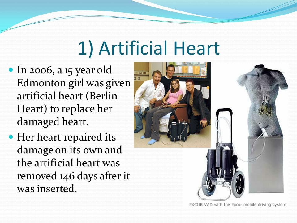 1) Artificial Heart In 2006, a 15 year old Edmonton girl was given artificial heart (Berlin Heart) to replace her damaged heart.