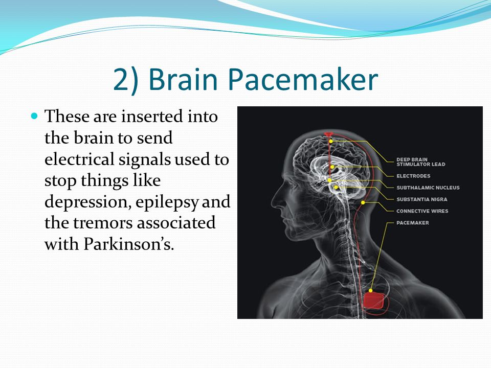 2) Brain Pacemaker