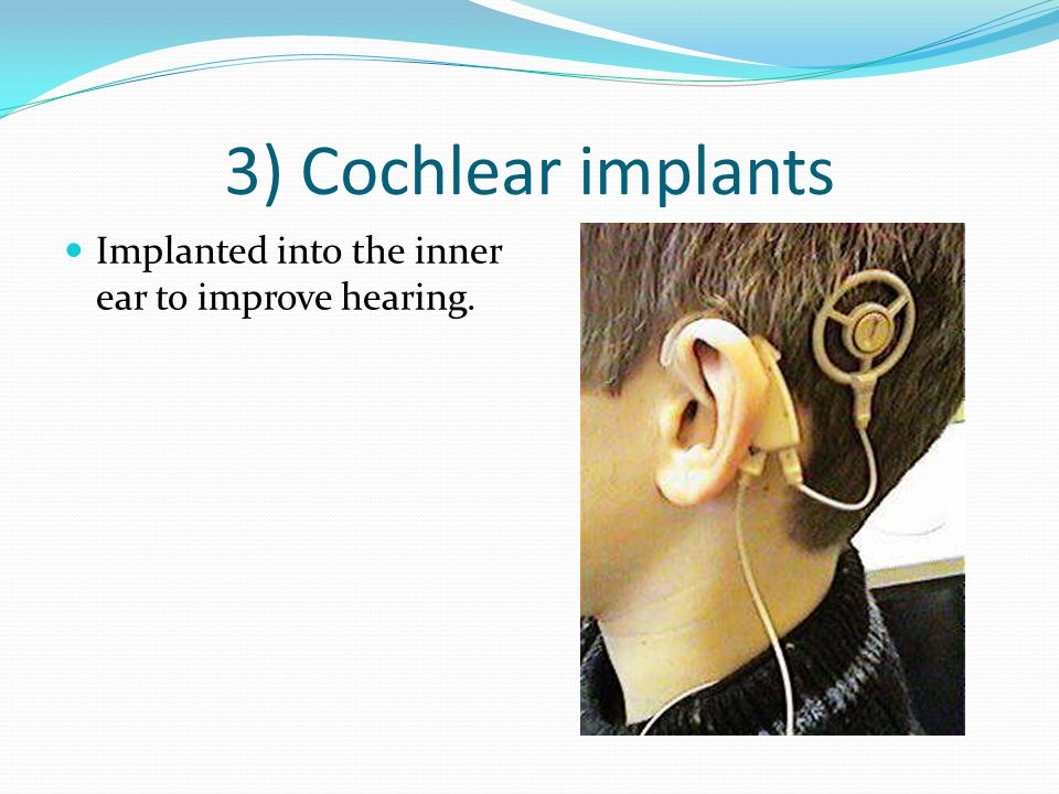 3) Cochlear implants Implanted into the inner ear to improve hearing.