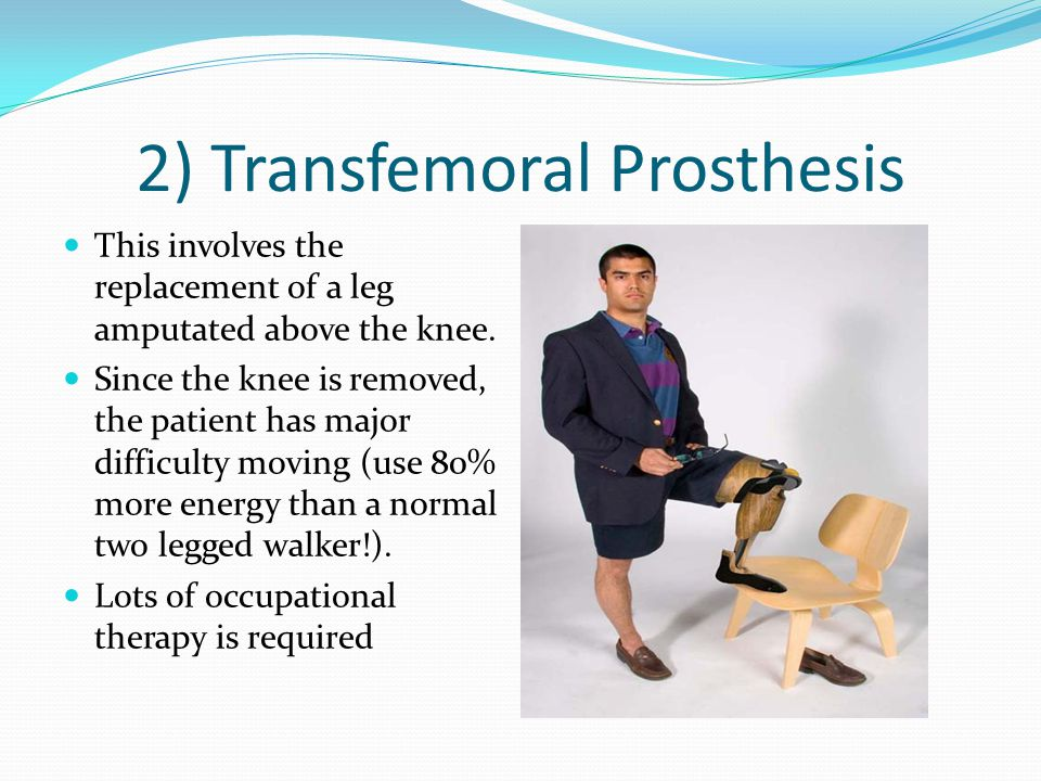 2) Transfemoral Prosthesis