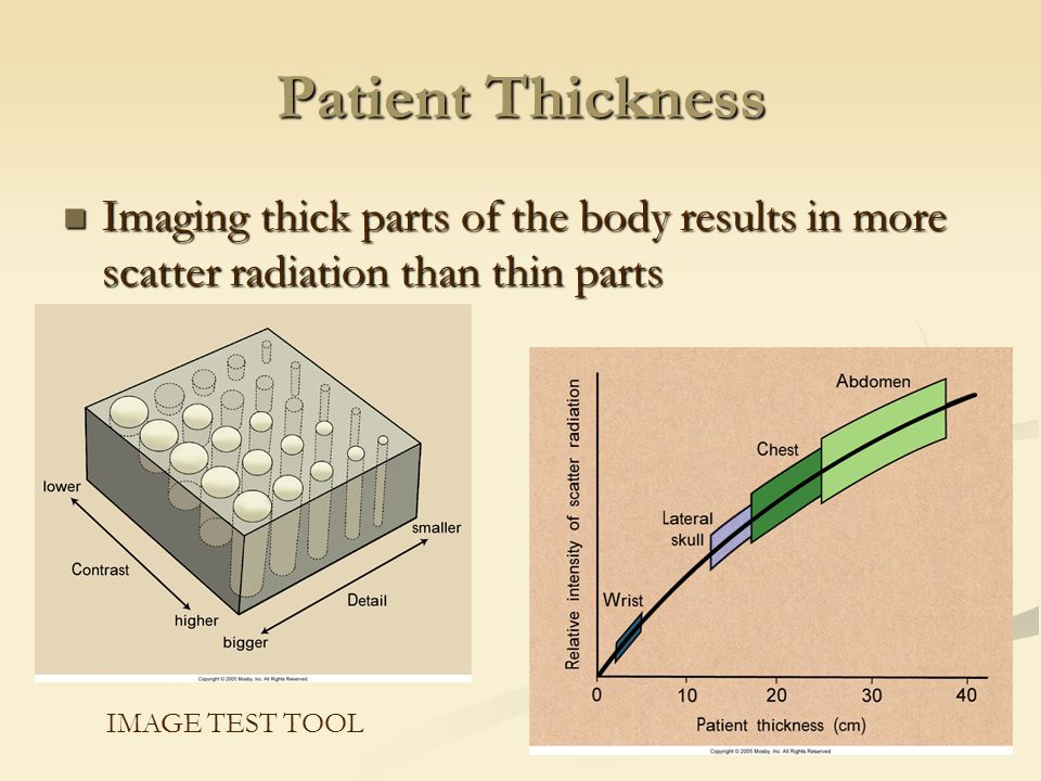 Patient Thickness Imaging thick parts of the body results in more scatter radiation than thin parts.