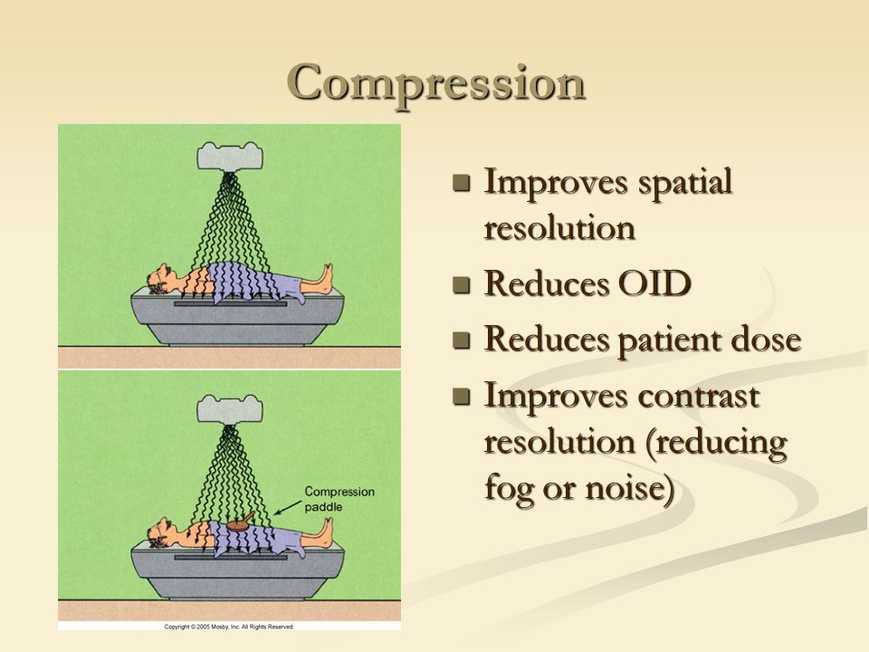 Compression Improves spatial resolution Reduces OID