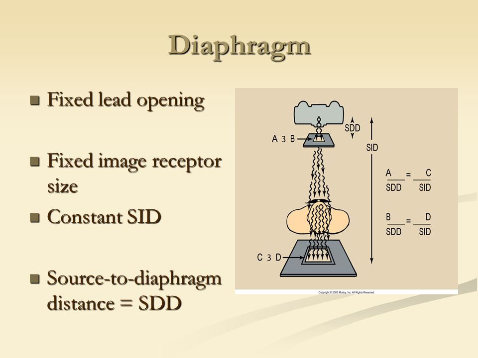 Diaphragm Fixed lead opening Fixed image receptor size Constant SID