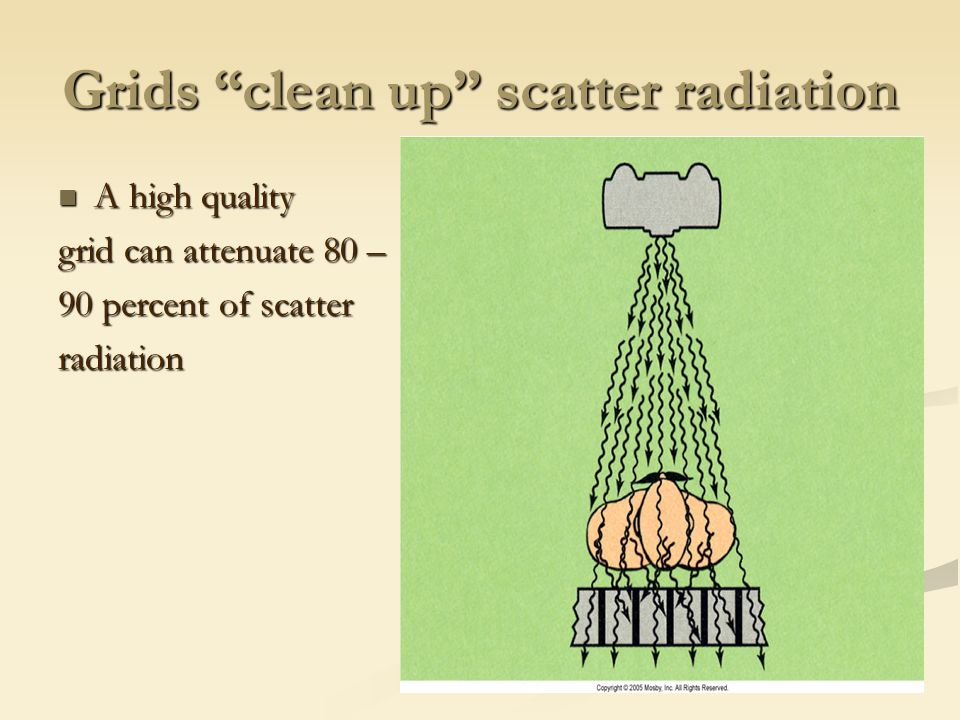 Grids clean up scatter radiation