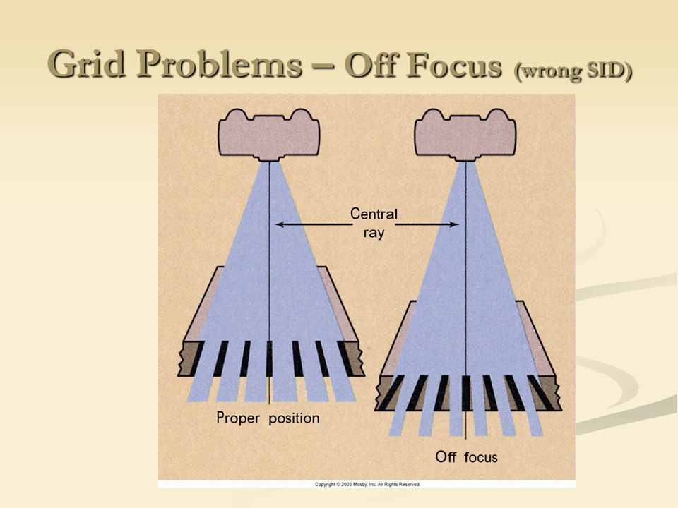 Grid Problems – Off Focus (wrong SID)