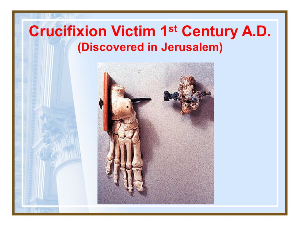 Crucifixion Victim 1st Century A.D. (Discovered in Jerusalem)
