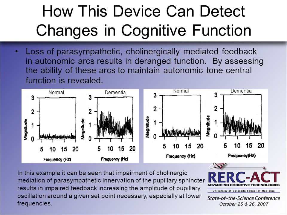 How This Device Can Detect Changes in Cognitive Function