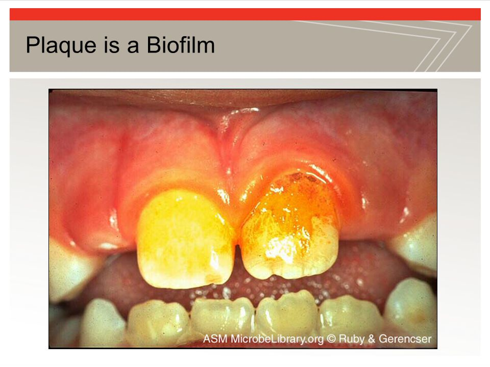 Plaque is a Biofilm