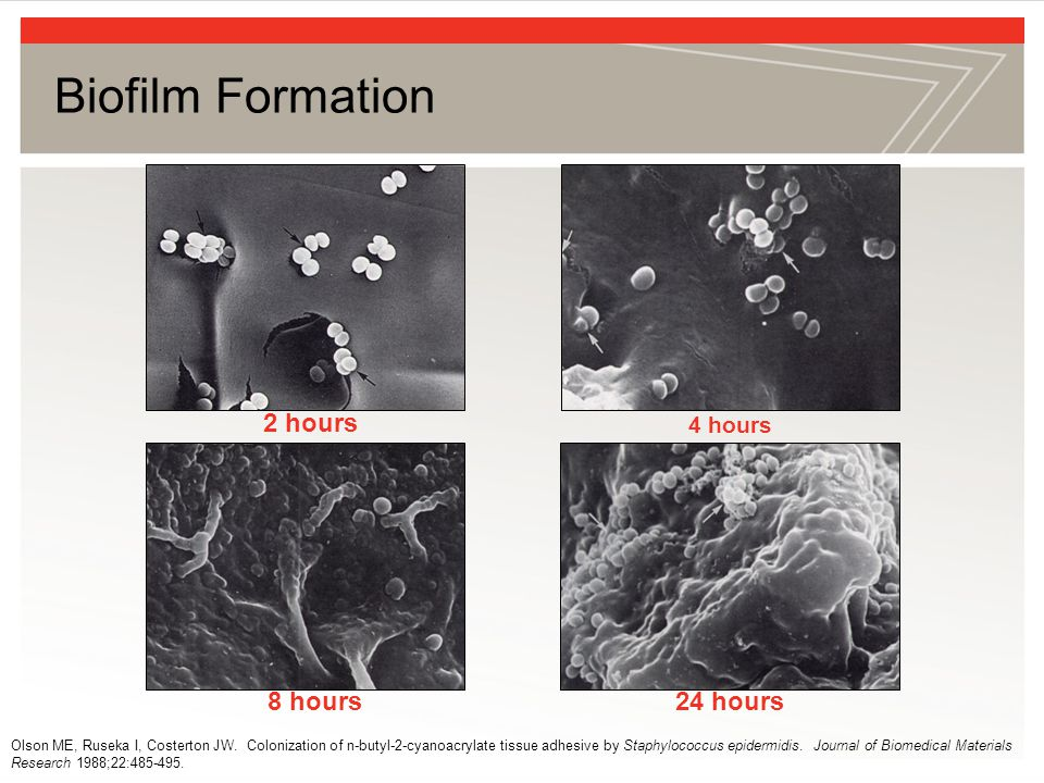 Biofilm Formation 2 hours 8 hours 24 hours 4 hours