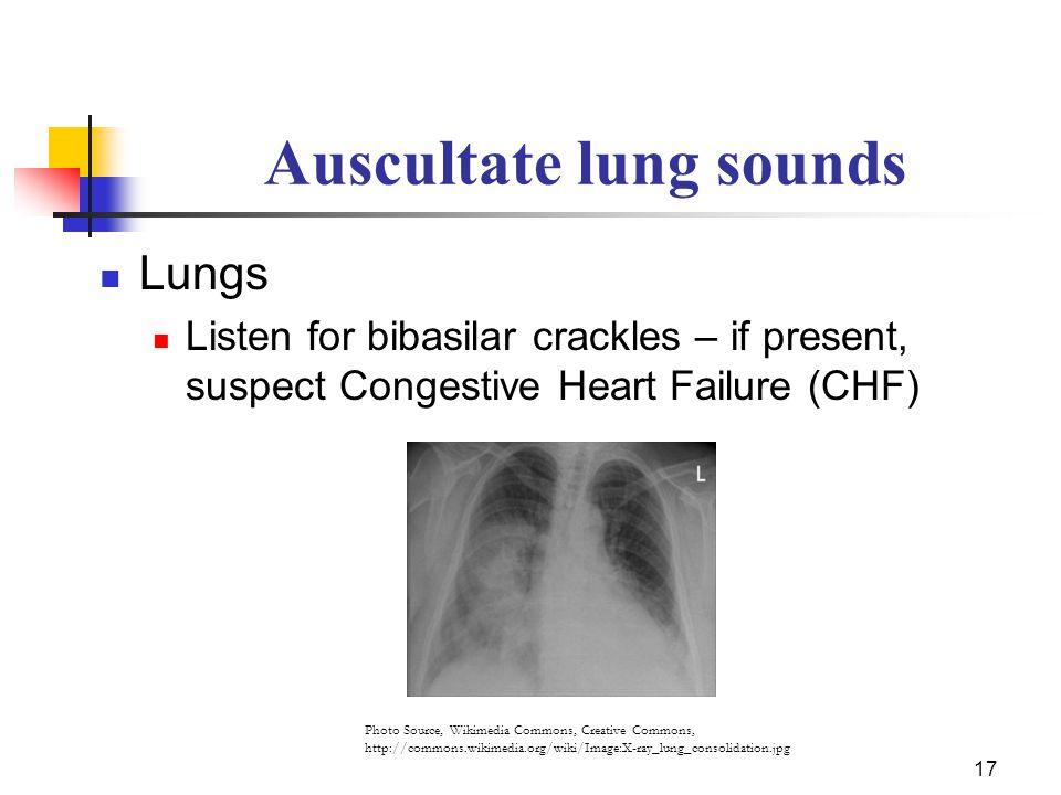 Auscultate lung sounds