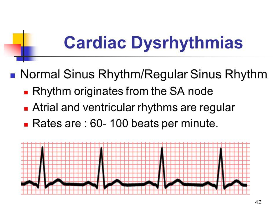 Cardiac Dysrhythmias Normal Sinus Rhythm/Regular Sinus Rhythm