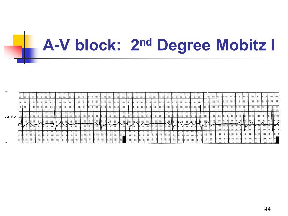A-V block: 2nd Degree Mobitz I