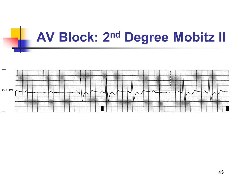 AV Block: 2nd Degree Mobitz II