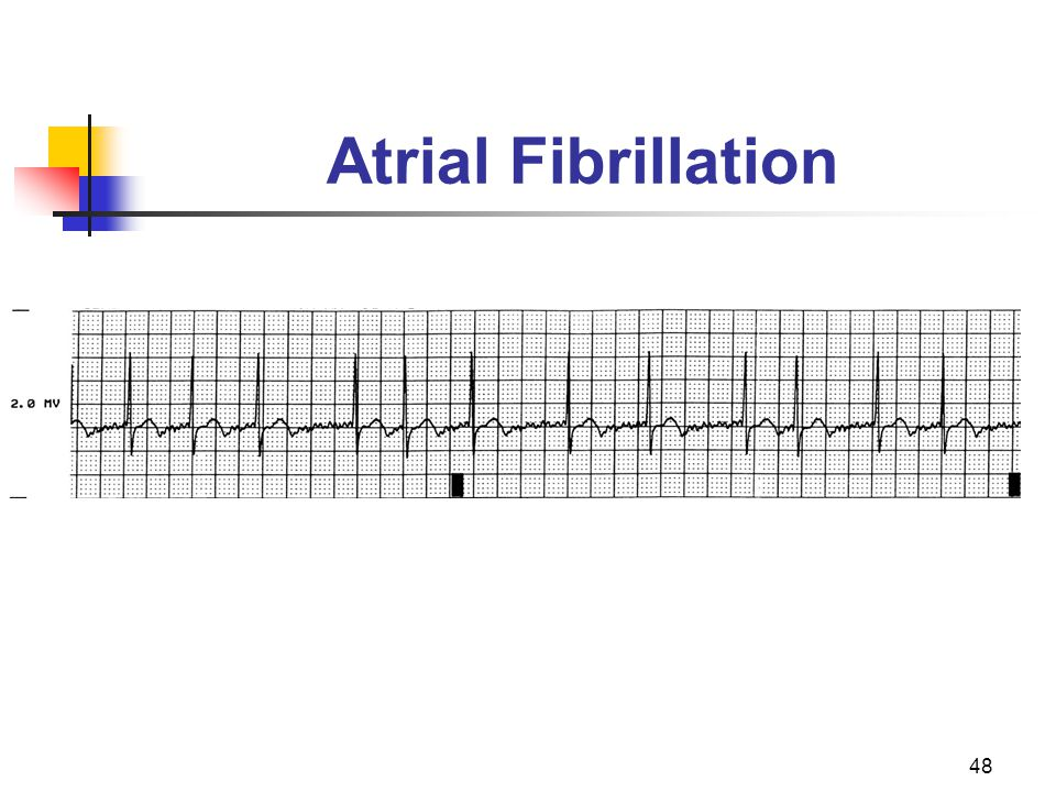 Atrial Fibrillation There are no P waves present.