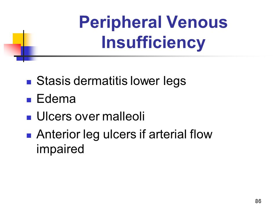 Peripheral Venous Insufficiency