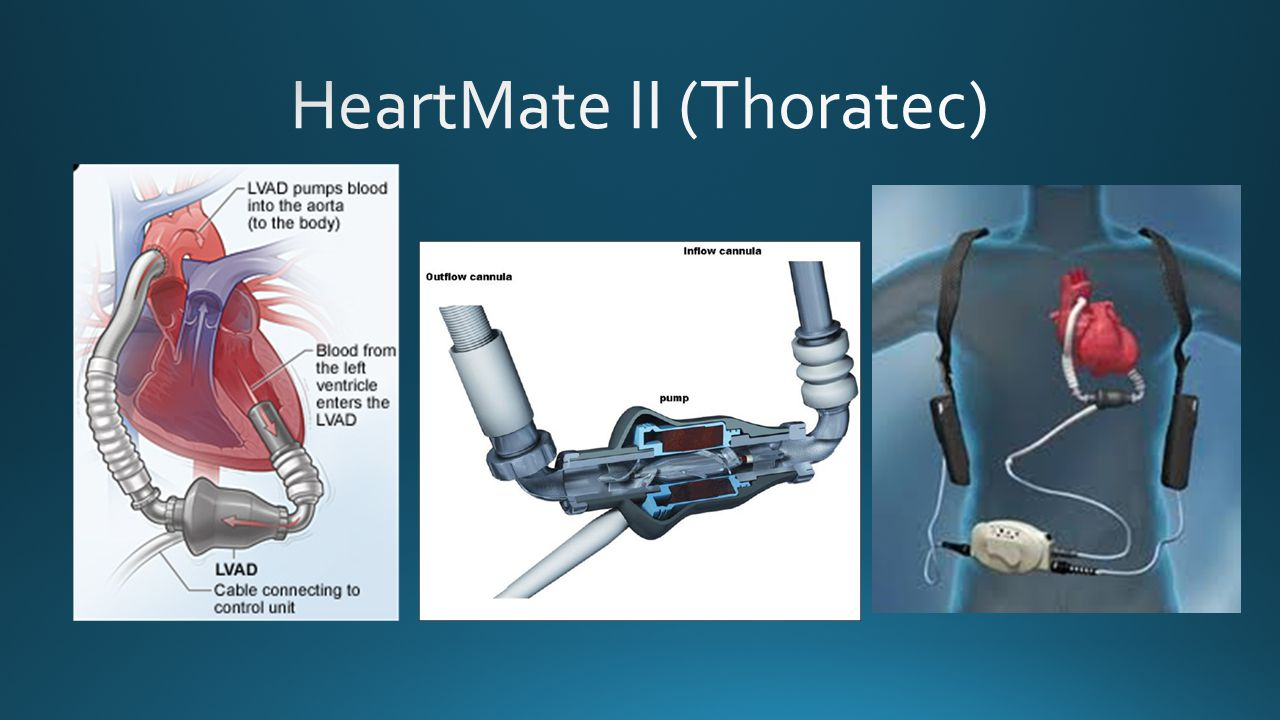 HeartMate II (Thoratec)