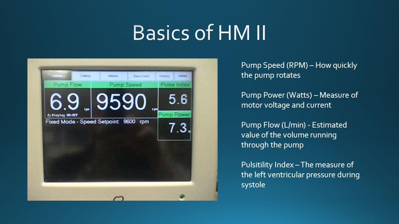 Basics of HM II Pump Speed (RPM) – How quickly the pump rotates