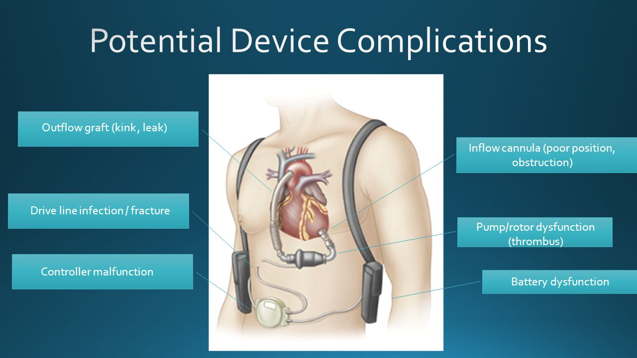 Potential Device Complications