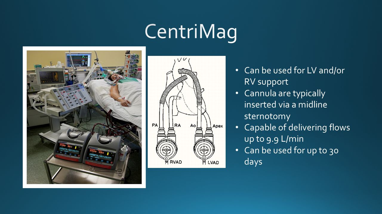 CentriMag Can be used for LV and/or RV support