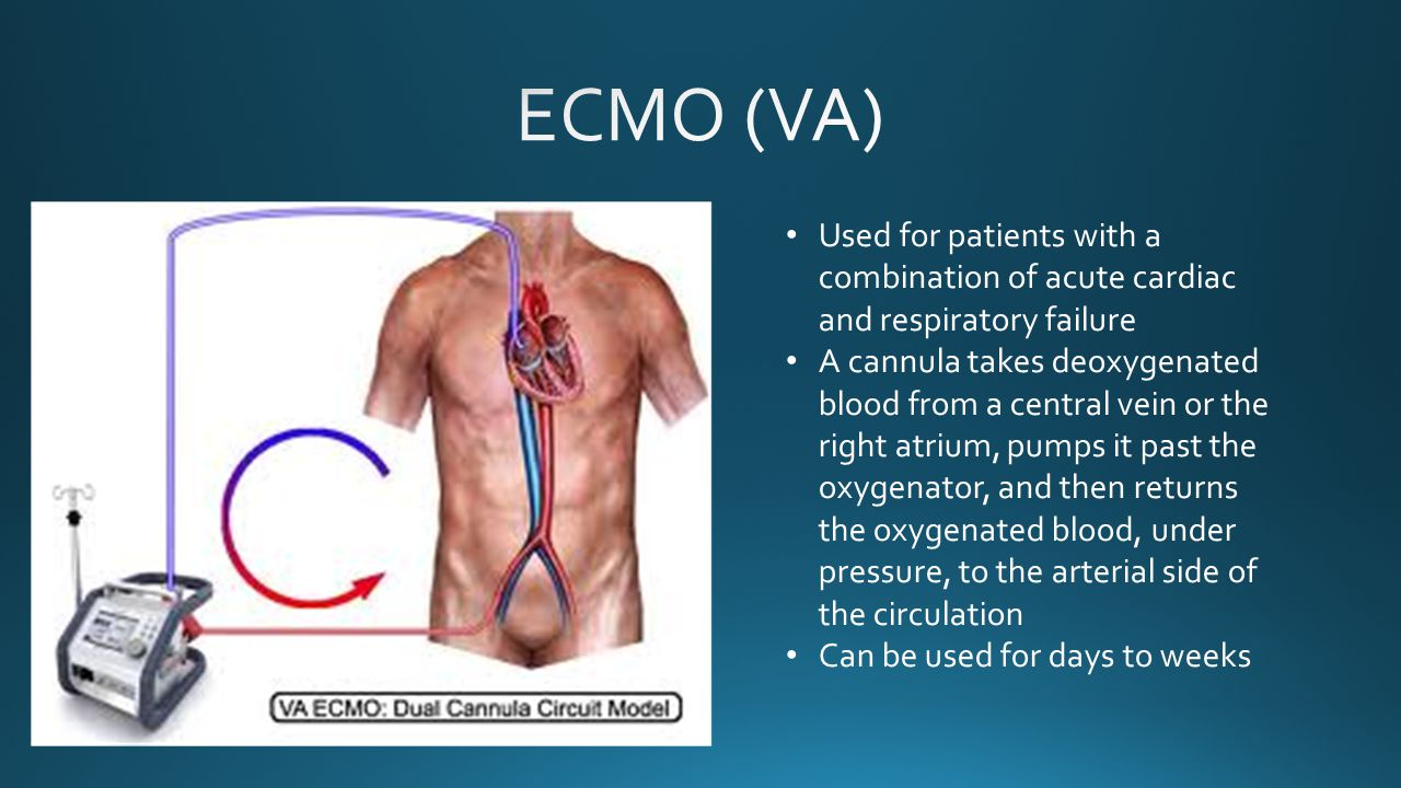 ECMO (VA) Used for patients with a combination of acute cardiac and respiratory failure.