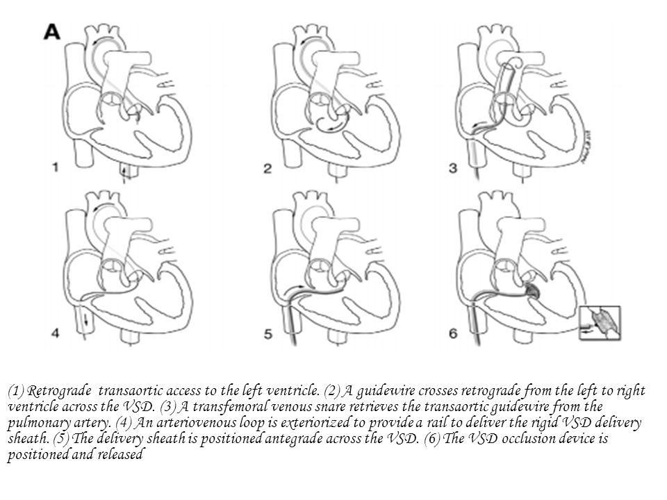(1) Retrograde transaortic access to the left ventricle