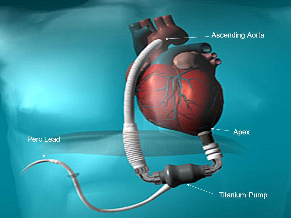 Ascending Aorta Apex Perc Lead Titanium Pump